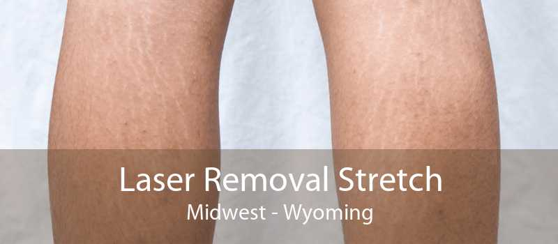 Laser Removal Stretch Midwest - Wyoming