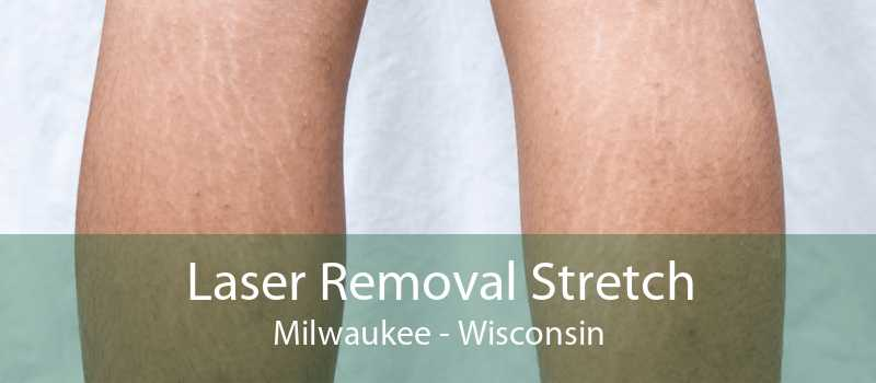 Laser Removal Stretch Milwaukee - Wisconsin