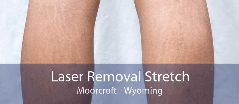 Laser Removal Stretch Moorcroft - Wyoming