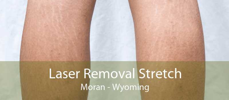 Laser Removal Stretch Moran - Wyoming