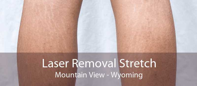 Laser Removal Stretch Mountain View - Wyoming