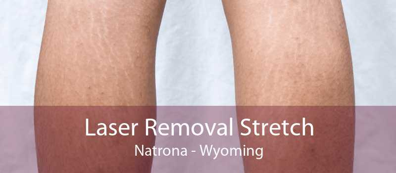 Laser Removal Stretch Natrona - Wyoming