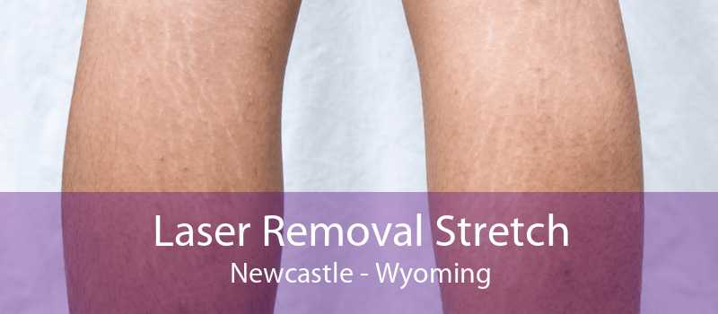 Laser Removal Stretch Newcastle - Wyoming