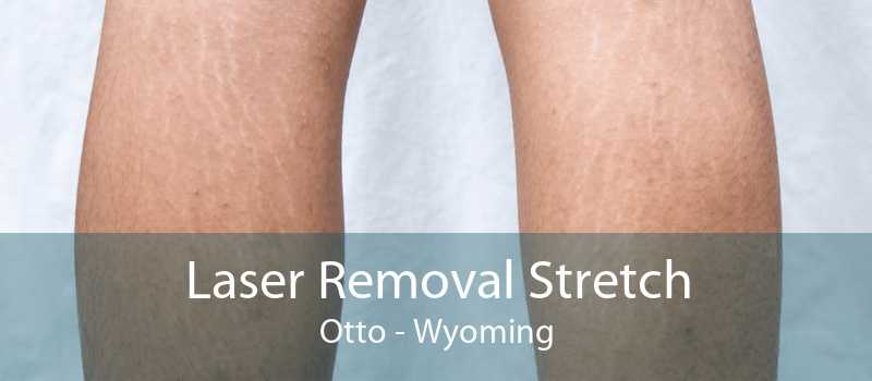 Laser Removal Stretch Otto - Wyoming