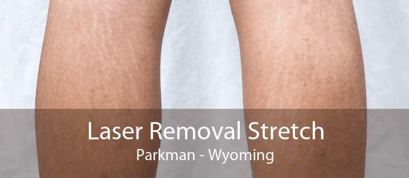 Laser Removal Stretch Parkman - Wyoming