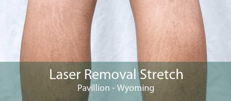 Laser Removal Stretch Pavillion - Wyoming