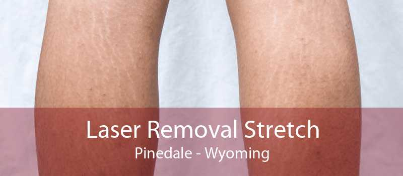 Laser Removal Stretch Pinedale - Wyoming