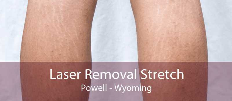 Laser Removal Stretch Powell - Wyoming