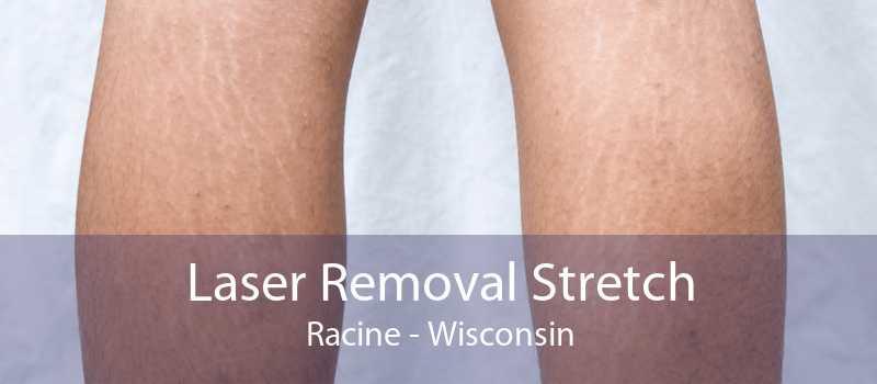 Laser Removal Stretch Racine - Wisconsin