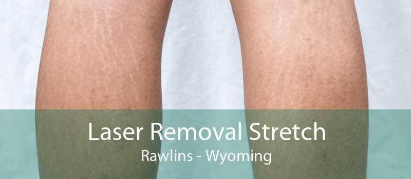 Laser Removal Stretch Rawlins - Wyoming