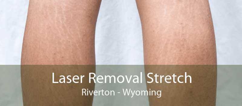 Laser Removal Stretch Riverton - Wyoming