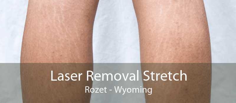 Laser Removal Stretch Rozet - Wyoming