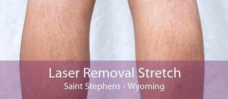 Laser Removal Stretch Saint Stephens - Wyoming