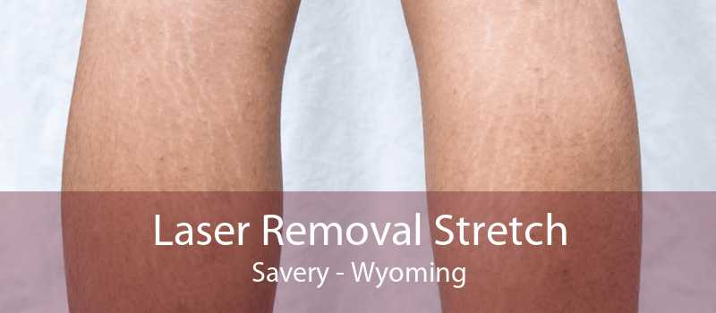 Laser Removal Stretch Savery - Wyoming