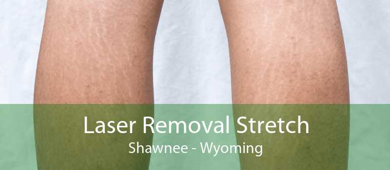 Laser Removal Stretch Shawnee - Wyoming