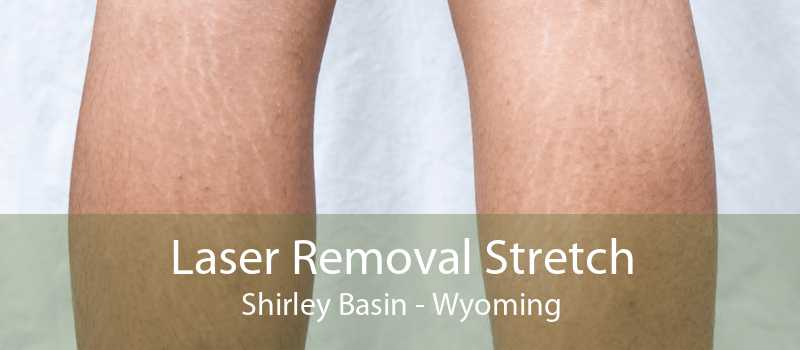 Laser Removal Stretch Shirley Basin - Wyoming