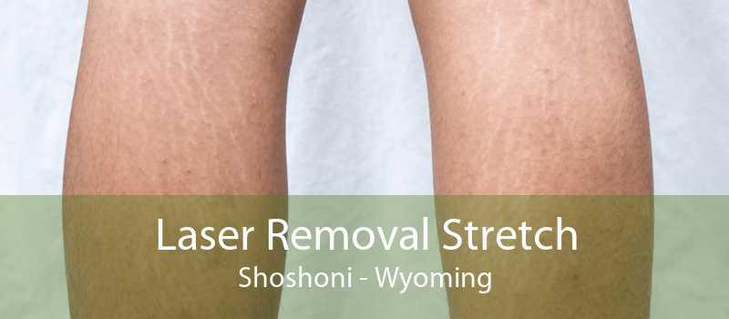 Laser Removal Stretch Shoshoni - Wyoming