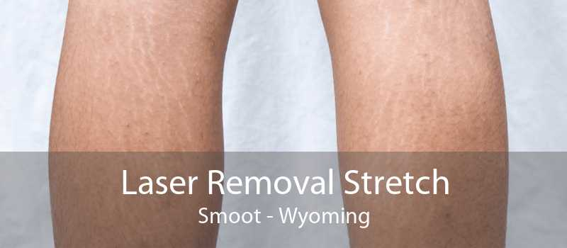 Laser Removal Stretch Smoot - Wyoming