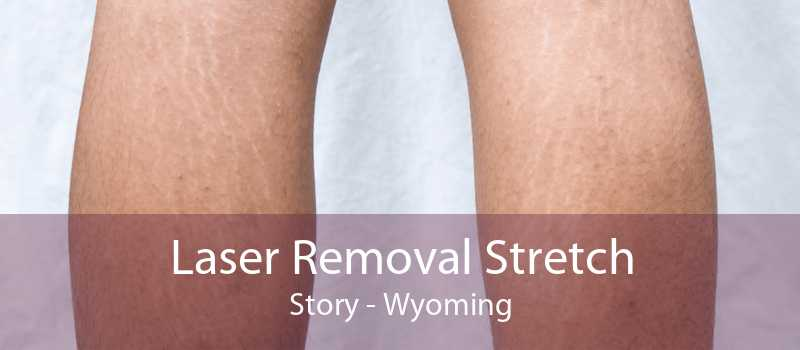 Laser Removal Stretch Story - Wyoming