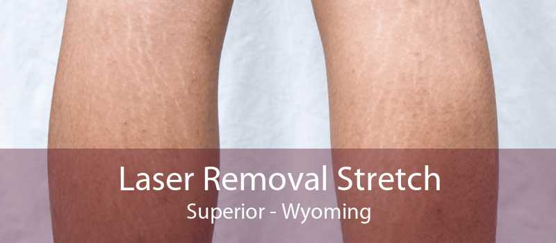 Laser Removal Stretch Superior - Wyoming