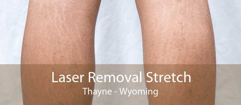 Laser Removal Stretch Thayne - Wyoming