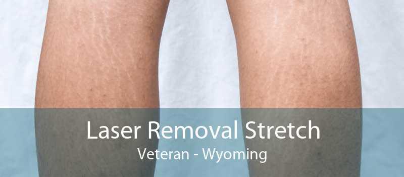 Laser Removal Stretch Veteran - Wyoming