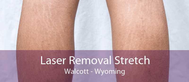 Laser Removal Stretch Walcott - Wyoming