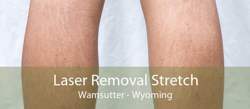 Laser Removal Stretch Wamsutter - Wyoming