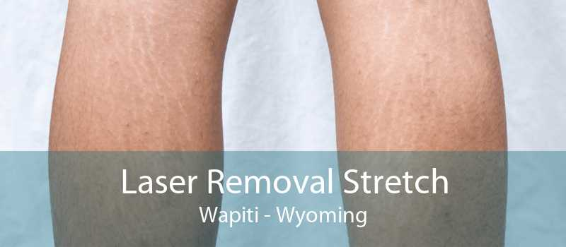 Laser Removal Stretch Wapiti - Wyoming