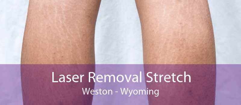 Laser Removal Stretch Weston - Wyoming
