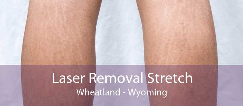 Laser Removal Stretch Wheatland - Wyoming
