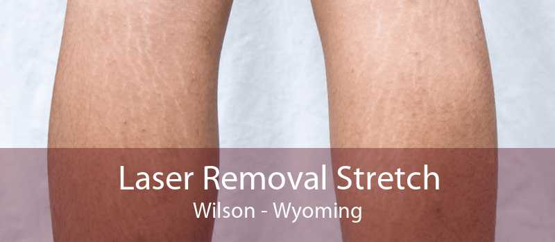 Laser Removal Stretch Wilson - Wyoming
