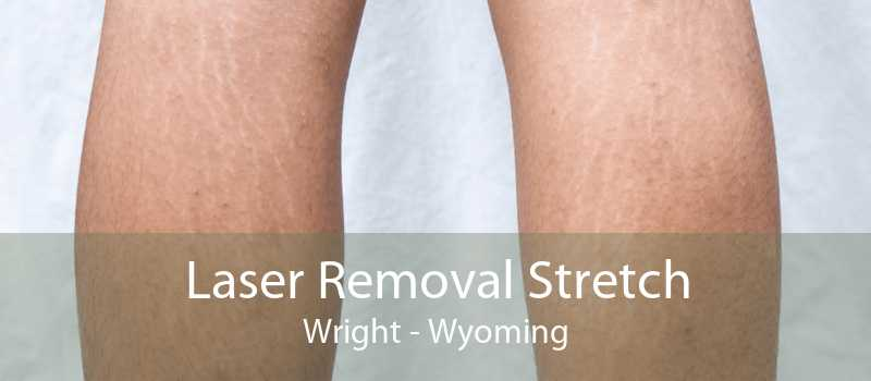 Laser Removal Stretch Wright - Wyoming