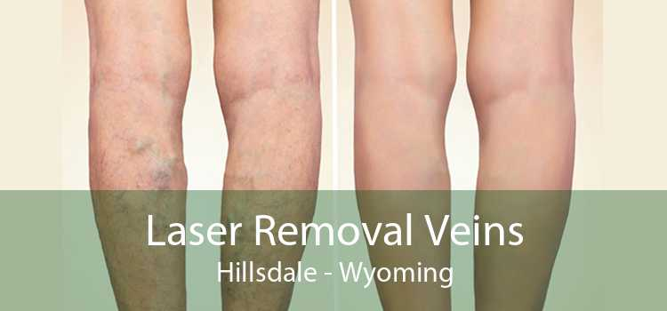 Laser Removal Veins Hillsdale - Wyoming