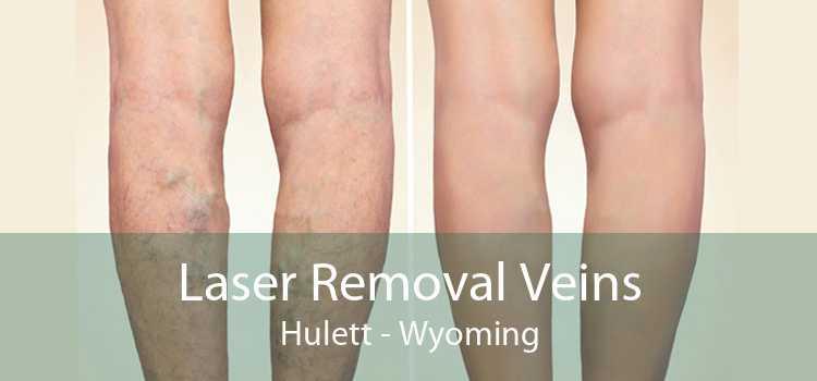 Laser Removal Veins Hulett - Wyoming