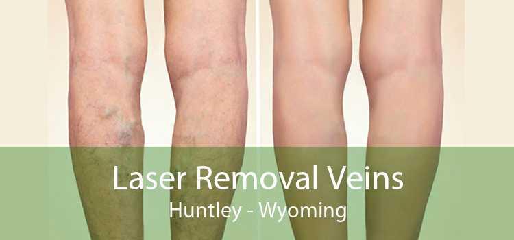 Laser Removal Veins Huntley - Wyoming