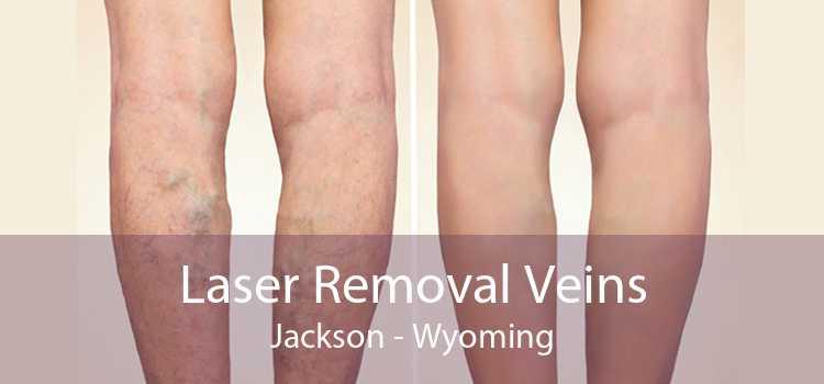 Laser Removal Veins Jackson - Wyoming
