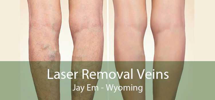 Laser Removal Veins Jay Em - Wyoming