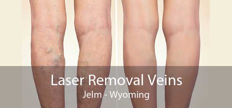 Laser Removal Veins Jelm - Wyoming