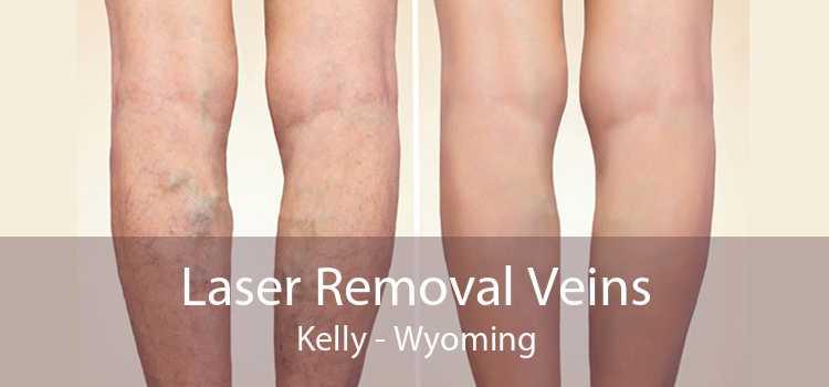 Laser Removal Veins Kelly - Wyoming