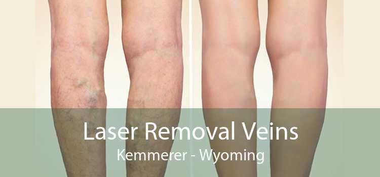 Laser Removal Veins Kemmerer - Wyoming
