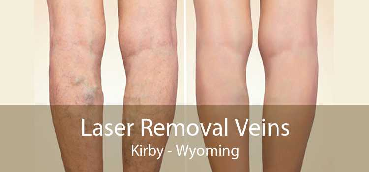 Laser Removal Veins Kirby - Wyoming