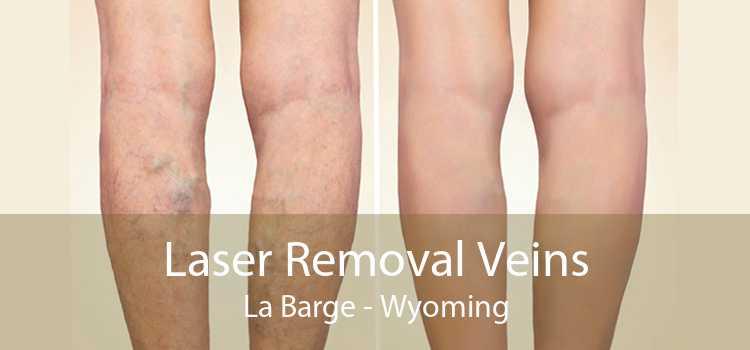 Laser Removal Veins La Barge - Wyoming