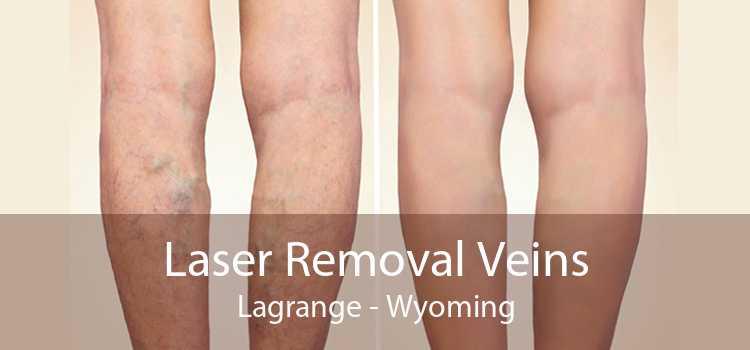 Laser Removal Veins Lagrange - Wyoming