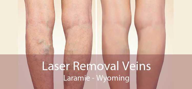 Laser Removal Veins Laramie - Wyoming