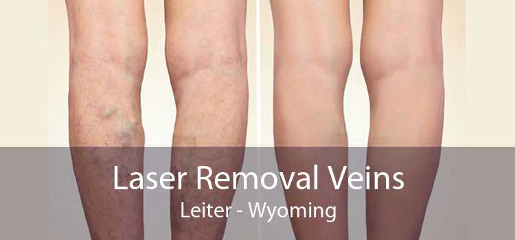 Laser Removal Veins Leiter - Wyoming