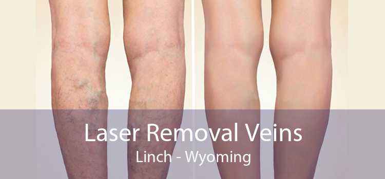 Laser Removal Veins Linch - Wyoming