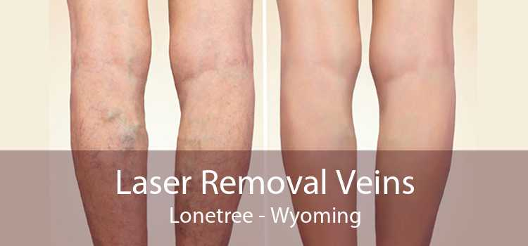 Laser Removal Veins Lonetree - Wyoming