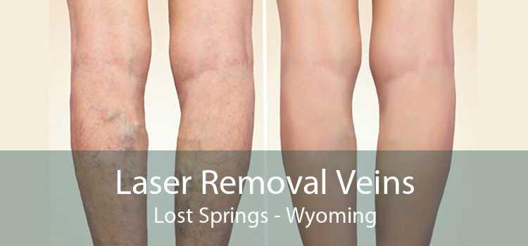 Laser Removal Veins Lost Springs - Wyoming