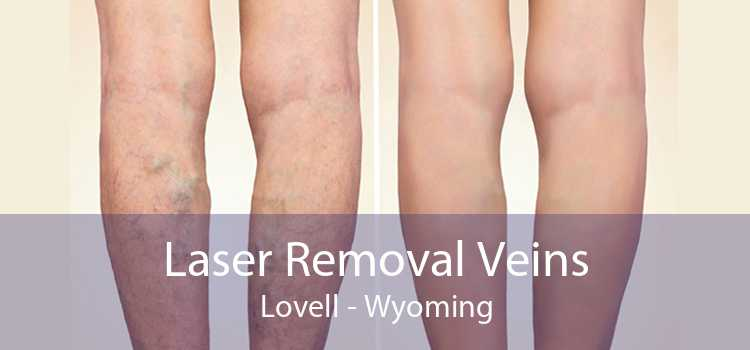 Laser Removal Veins Lovell - Wyoming